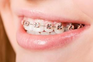 orthodontie-stad-vd-zon-kinderen