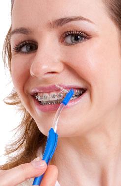 poetsinstructie-orthodontie